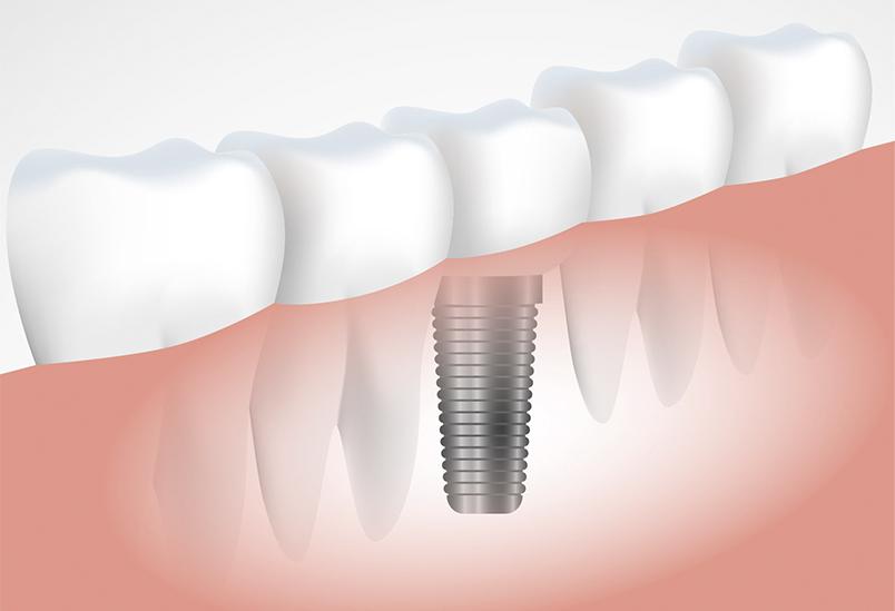 Implantes Dentários: Tudo que precisa saber